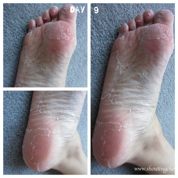 foot skin peeling off